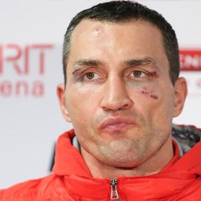 Кличко назвал Фьюри слабоумным чемпионом в супертяжелом весе и сравнил с Гитлером