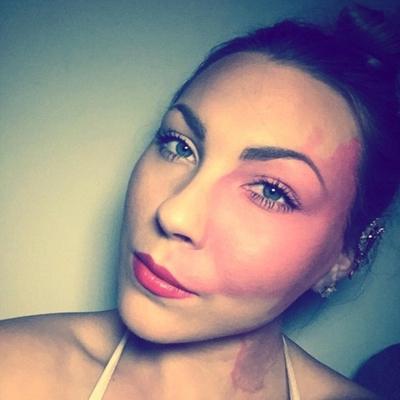 Несовершенство делает вас уникальным, - девушка с пятном на лице стала известной моделью (фото)