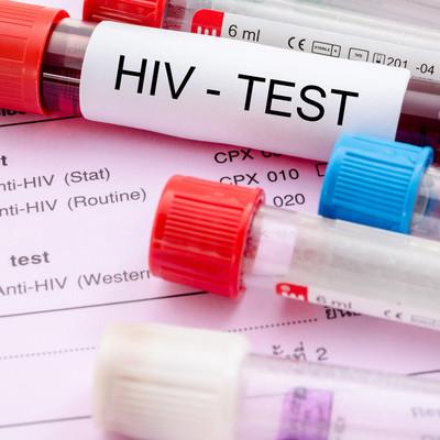 Норвежские власти раздают жителям профилактические препараты от ВИЧ
