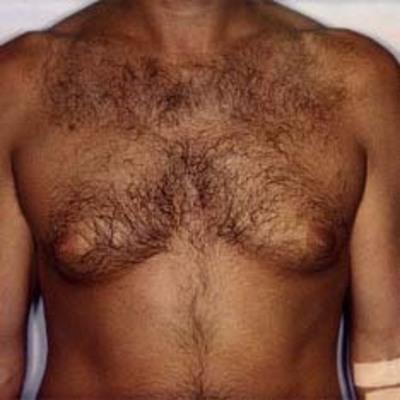 Фото волосатая женская грудь 54394 фотография