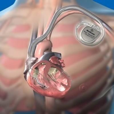 Сердечникам на зло: Хакеры научились взламывать кардиостимуляторы