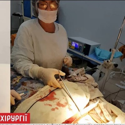 Хирурги института Шилимова благополучно достали из шеи 25-сантиметровый кол