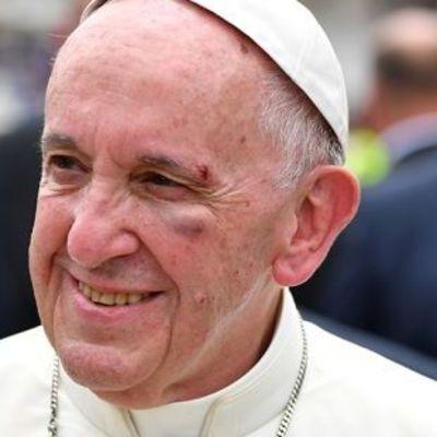 Папа Римский получил травму во время поездки на авто (видео)