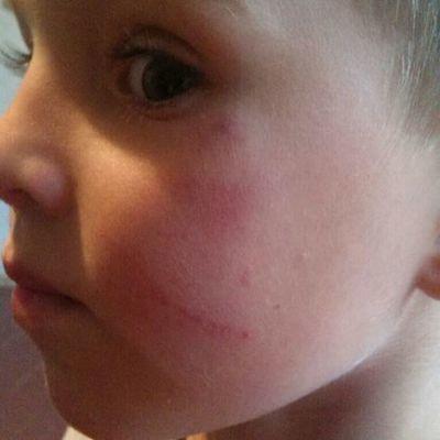 На Киевщине заведующая детского сада бросила ребенка об пол