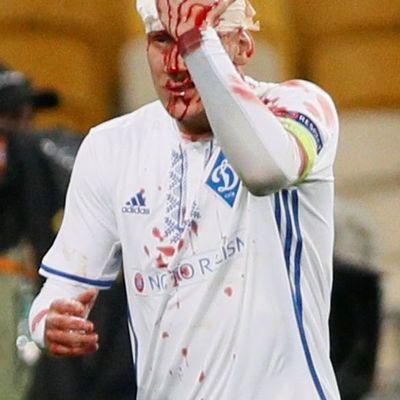 Защитник «Динамо» конкретно разбил голову во время матча