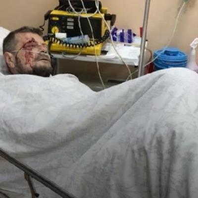 Покушение на Мосийчука: стало известно, в каком состоянии нардеп после операции