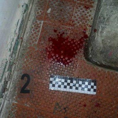 Киевлянин пытался утопить в туалете собственную мать (фото)