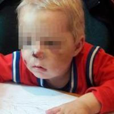 На Житомирщине мать жестоко избила 2-летнего сына