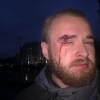 В Киеве избили киборга после конфликта с продавцами сине-желтых лент у памятника Небесной сотне