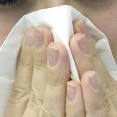 У китаянки в носу вырос зуб (фото)