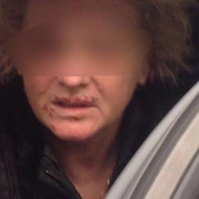 Под Киевом женщину неделю держали в подвале и требовали 100 тыс. долларов выкупа (фото)