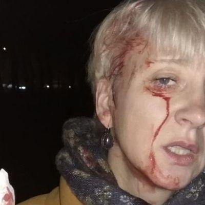 В Полтаве жестоко избили судью дубинками