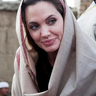 Иранка изуродовала лицо ужасной пластикой и стала как Джоли (фото)