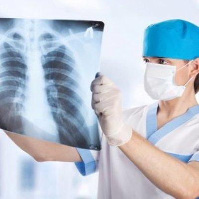 Киевляне смогут бесплатно провериться на туберкулез