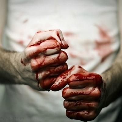 В Одесской области до смерти избили пастуха