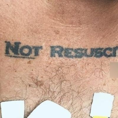 Врачи отказались вытаскивать пациента из комы из-за тату на его теле, мужчина умер
