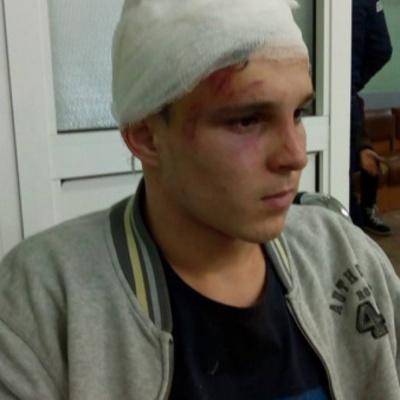 На Киевщине в новогоднюю ночь пятеро подростков жестоко избили парня