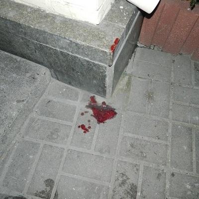 В Киеве подростки жестоко избили и ограбили мужчину (фото)