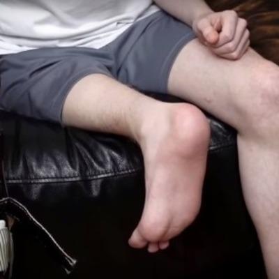 Революционная операция: врачи пришили подростку ногу задом наперед