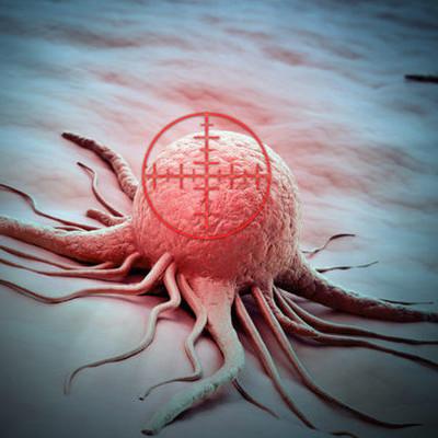 Медики назвали неожиданный метод лечения рака