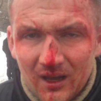 В Киеве жестоко избили нардепа