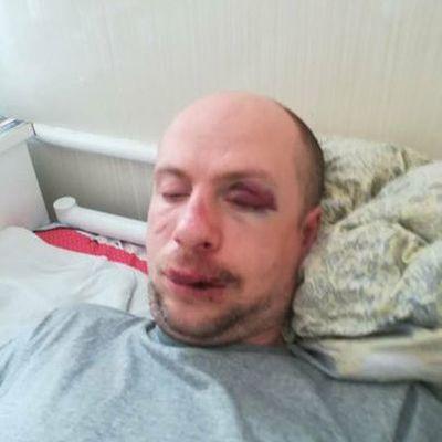 Под Киевом трое мужчин избили до полусмерти и ограбили инвалида войны на Донбассе (фото)