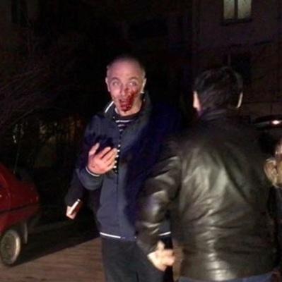 В Киеве случайный прохожий остановил поножовщину