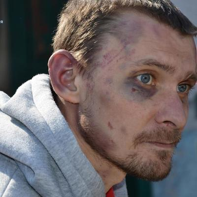 Трое суток держали на цепи и кололи ножом: В Луганской области полиция выявила факт пыток
