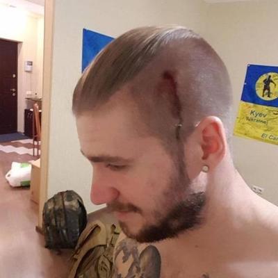 В Киеве напали на известного бойца АТО