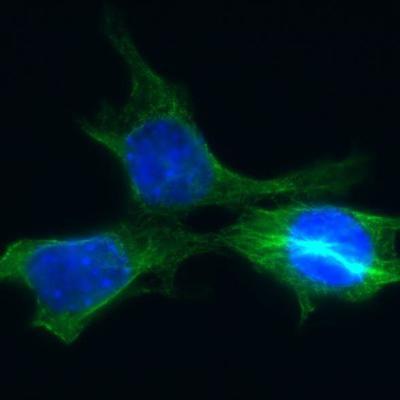 Ученые испытали на мышах средство против бессмертных раковых клеток