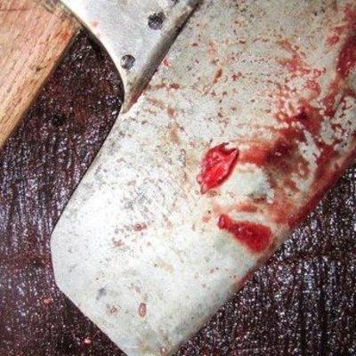 На Полтавщине 2-летней девочке на руку уронили топор