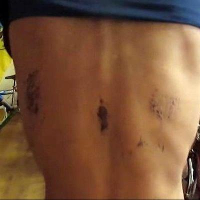 На Виннитчине избили АТОшника и заставили рыть себе могилу (фото, видео)