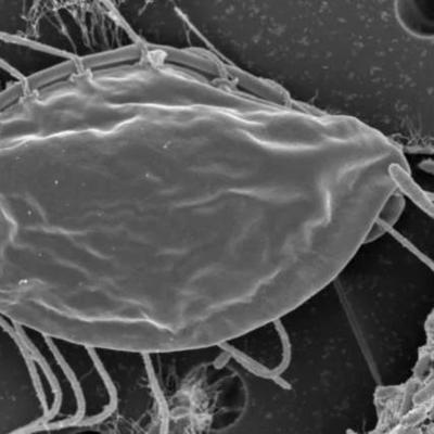 Ученые случайно открыли новое царство микроорганизмов