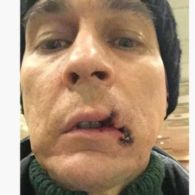 Российский оперный певец порвал рот во время спектакля