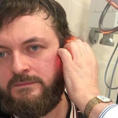 Избиение DZIDZIO: артист может потерять слух