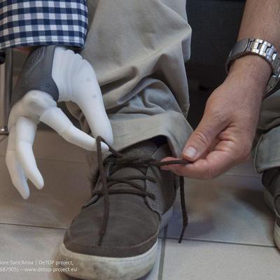Ученые впервые подключили протез руки к нервам человека (видео)