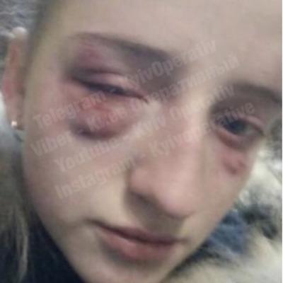 В Киеве школьницы жестоко избили одноклассницу и сняли расправу на видео