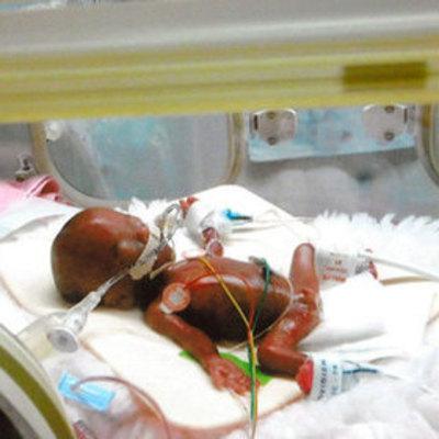 В Японии выходили самого маленького в мире новорожденного мальчика