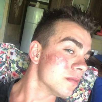 Турист сделал татуировку хной и сжег лицо