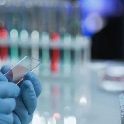 В Украине 804 лабораторно подтвержденных случаев COVID-19
