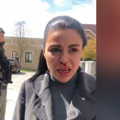 Депутат Киевского областного совета Глеб Лирник до синяков избил свою жену
